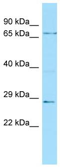 Western blot - Anti-Fbxw7 antibody (ab105752)