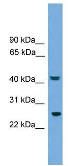 Western blot - Anti-RAB35 antibody (ab105762)