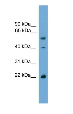 Western blot - Anti-WW domain binding protein 4 antibody (ab105763)