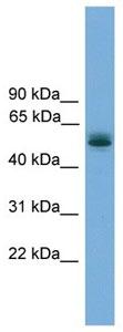 Western blot - Anti-CCDC76 antibody (ab105788)