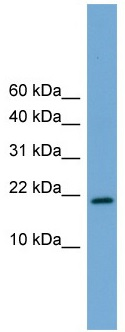 Western blot - Anti-CITED4 antibody (ab105797)