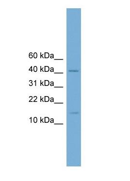 Western blot - Anti-PBX4 antibody (ab105805)