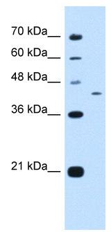 Western blot - Anti-PRRC2B antibody (ab105808)