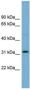 Western blot - Anti-OR2AT4 antibody (ab105828)