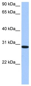 Western blot - Anti-RALYL antibody (ab105866)