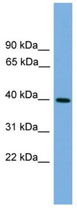 Western blot - Anti-ITLN2 antibody (ab105870)