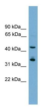 Western blot - Anti-Gbx1 antibody (ab105874)