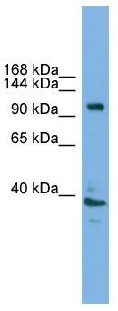 Western blot - Anti-ATP6V0A1 antibody (ab105937)