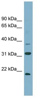 Western blot - Anti-HEMK2 antibody (ab106329)