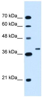 Western blot - Anti-RNF146 antibody (ab106334)