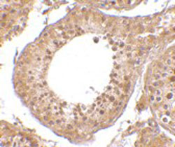 Immunohistochemistry (Formalin/PFA-fixed paraffin-embedded sections) - Anti-RGPD5 antibody (ab106360)