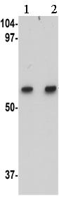 Western blot - Anti-MATN1 antibody (ab106384)