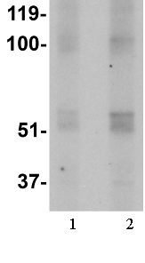 Western blot - Anti-FTO antibody (ab106386)