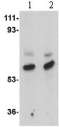 Western blot - Anti-MATN3 antibody (ab106388)