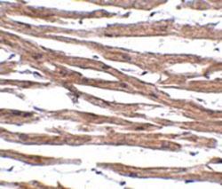 Immunohistochemistry (Formalin/PFA-fixed paraffin-embedded sections) - Anti-MAK10 antibody (ab106444)