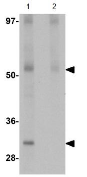 Western blot - Anti-JMJD4 antibody (ab106458)