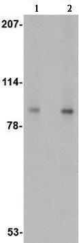 Western blot - Anti-VPS53 antibody (ab106469)