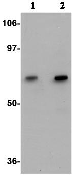 Western blot - Anti-GALNT10 antibody (ab106471)