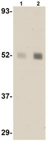 Western blot - Anti-LXR beta antibody (ab106473)