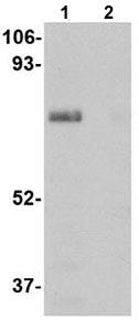 Western blot - LIMPII antibody (ab106519)