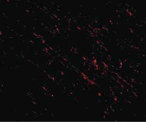 Immunocytochemistry/ Immunofluorescence - Anti-Nanos Homologue 1 (NANOS1) antibody (ab106535)