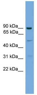 Western blot - Anti-L3MBTL3 antibody (ab106573)