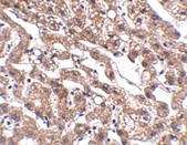 Immunohistochemistry (Formalin/PFA-fixed paraffin-embedded sections) - Anti-MACC1 antibody (ab106579)