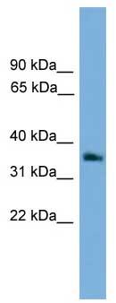Western blot - Anti-G protein beta 4 antibody (ab106599)