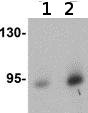 Western blot - Anti-DCAMKL1 antibody (ab106635)