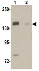 Western blot - Anti-N4BP1 antibody (ab106649)