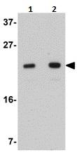 Western blot - Anti-LYRM2 antibody (ab106686)