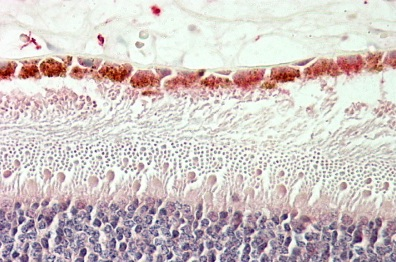 Immunohistochemistry (Formalin/PFA-fixed paraffin-embedded sections) - Anti-RDH5 antibody (ab106738)