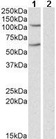 Western blot - Anti-IREB2 antibody (ab106926)