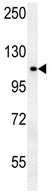 Western blot - Anti-OTUD4 antibody (ab106971)