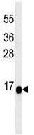 Western blot - Anti-C1orf186 antibody (ab106987)