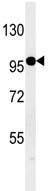 Western blot - Anti-KIAA1688 antibody (ab107035)