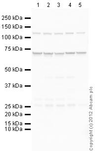 Western blot - Anti-HEXB antibody (ab107254)