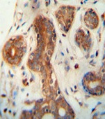 Immunohistochemistry (Formalin/PFA-fixed paraffin-embedded sections) - Anti-CEPT1 antibody (ab107415)