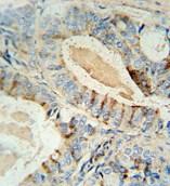 Immunohistochemistry (Formalin/PFA-fixed paraffin-embedded sections) - Anti-GCNT2 antibody (ab107511)