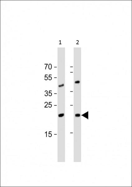 Western blot - Anti-ORMDL3 antibody (ab107639)