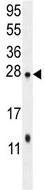 Western blot - Anti-TMEM50B antibody (ab107741)