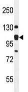 Western blot - Anti-KIAA0090 antibody (ab107838)