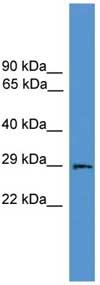 Western blot - Anti-Aquaporin 2 antibody (ab108065)
