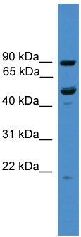 Western blot - Anti-C3orf59 antibody (ab108081)