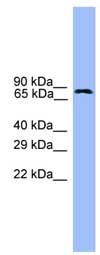 Western blot - Anti-USP1 antibody (ab108104)