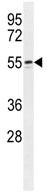 Western blot - Anti-WIPF2 antibody (ab108132)