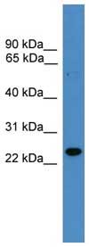 Western blot - Anti-RAB9B antibody (ab108135)