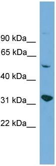 Western blot - Anti-YIPF2 antibody (ab108157)
