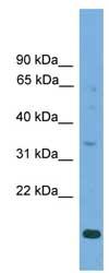 Western blot - Anti-SLC25A44 antibody (ab108224)