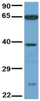 Western blot - Anti-KLHL20 antibody (ab108238)